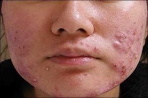 محلول-SA2مخصوص-پوست-های-جوش-دار