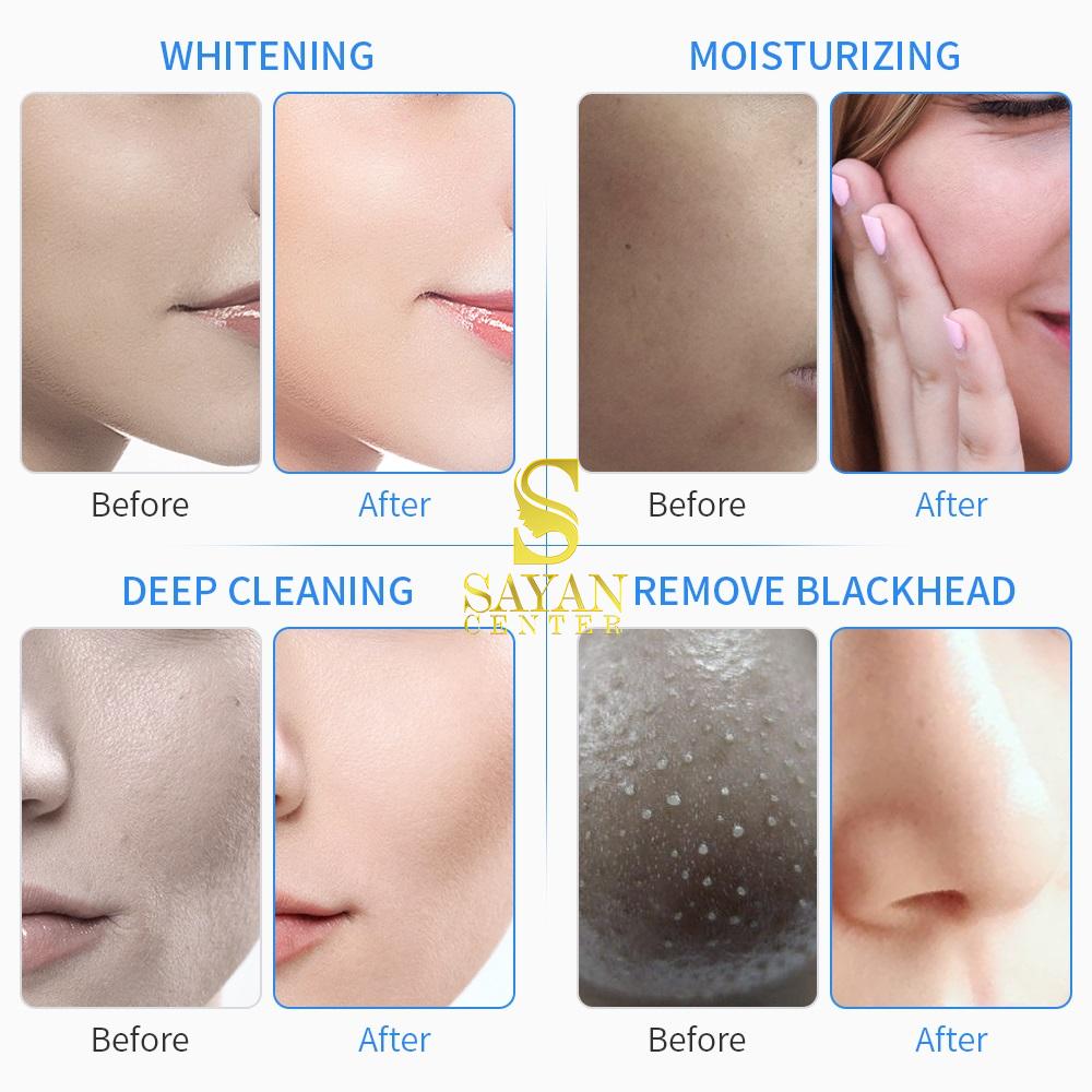 تاثیرات دستگاه هیدرافیشیال بر پوست