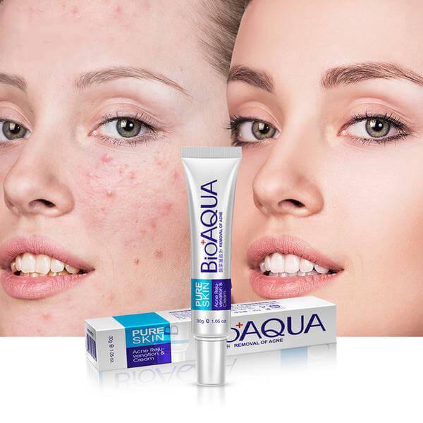 کرم درمان جای جوش و اسکار پوست بیوآکو 1 اPURE SKIN - BioAQUA