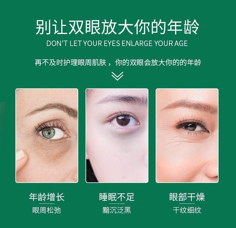 روشن-کننده-و-مرطوب-کننده-زیر-چشم-سنتلا