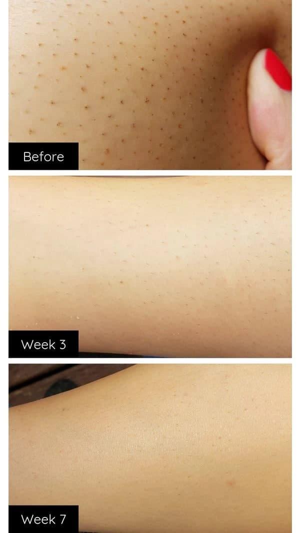 لیزر-رفع-موی-دائمی-صورت-و-بدن